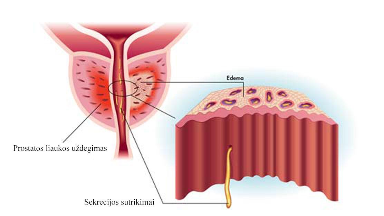 blogos erekcijos po prostatito gydymas