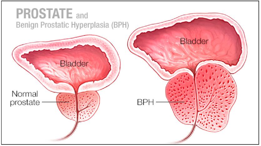 erekcijos susilpnėjimas ir prostatitas