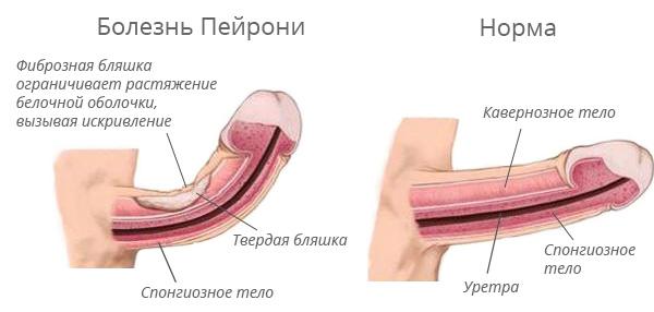 visų ligų ant varpos kokius maisto produktus turite valgyti kad padidintumėte erekciją