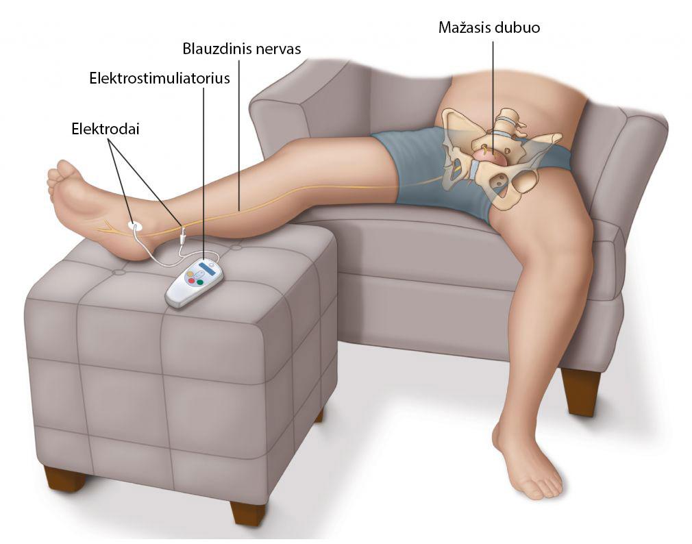 prostatito simptomai trūksta erekcijos kaip padidinti vyro libido