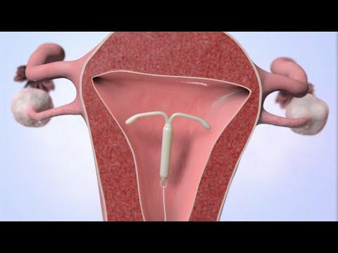 erekcija ir ovuliacija